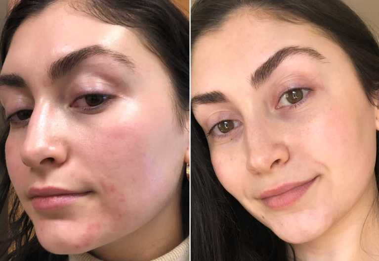 My-Skin-Right-After-Treatment-vs-One-Month-Later-compressed