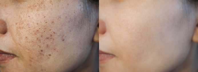 image-before-after-dark-spot-260nw-1532274347-compressed