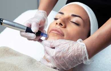 Acne Treatments Removal