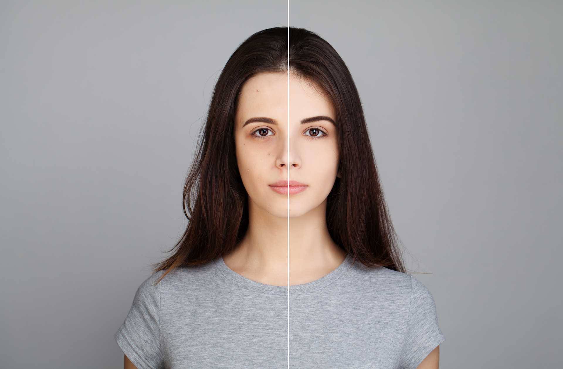Enlarged Pores Treatments