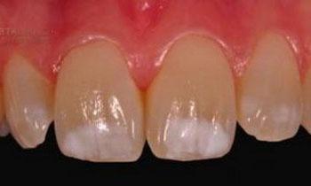 Каким образом проводится лечение гипоплазии зубной эмали