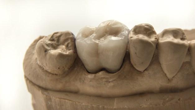 молар от фелдшпат керамика