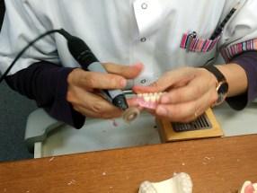 Изработка на силиконова зъбна протеза ТермоСенс