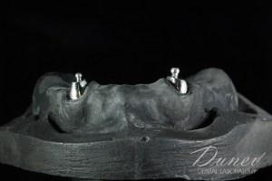 моделно лята протеза ключалки препоръчайте зъботехник варна