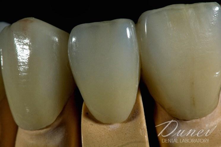 металокерамика зъби изработка зъботехническа лаборатория препоръчайте съвет варна
