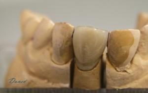 лаборатория изработка направа на зъби варна марин дунев