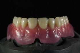 подвижно протезиране комбинирана тотална протеза Rhein83 Варна зъботехник изработка