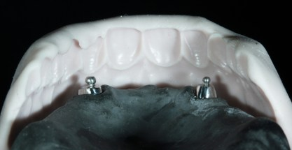 изработка на моделно ляти протези комбинирано протезиране силиконов ключ стави ключалки зъботехник