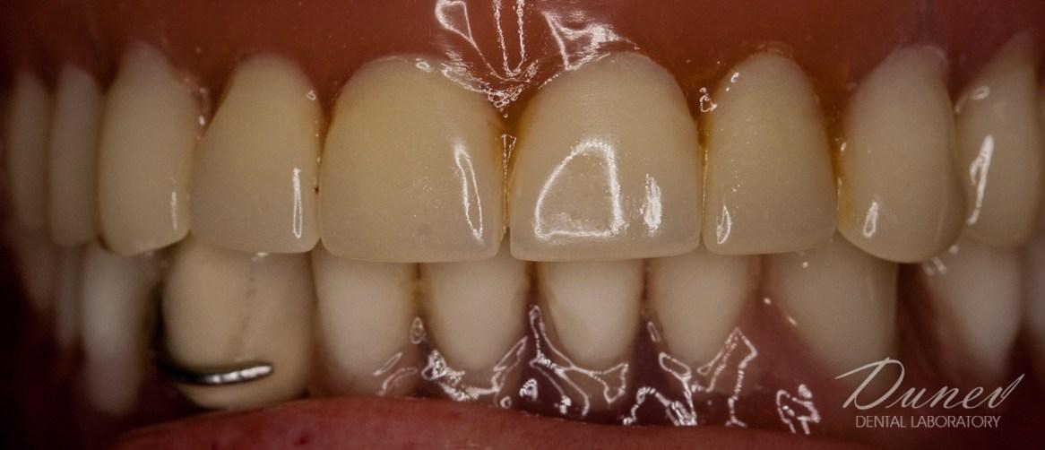 клиничен случай дентална фотография фотодокументиране преди и след марин дунев варна