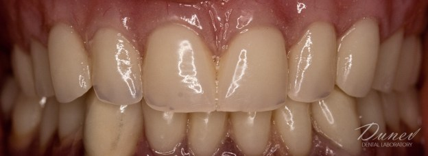 клиничен случай преди и след дентална фотография нова акрилна протеза варна марин дунев