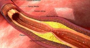 بند شریانوں کو بغیر دوا کے کھولنے والے 3 اجزاء
