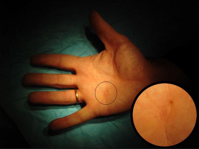deteriorarea capsulei articulației degetului mare)