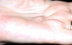 Bump on palm of hand related to Dupuytren contracutre
