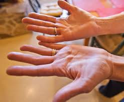 Picture of Dupuytren disease, multiple lumps on palms of both hand