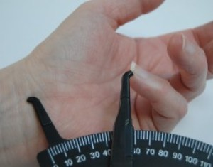 It is important to have an exact measurement at the start of Dupuytrens treatment to document how far each finger is contracted and how far hand won't open.