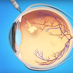 Healthy Living: Blood Pressure & Eyes