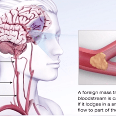 Healthy Living: Learn Signs of Stroke