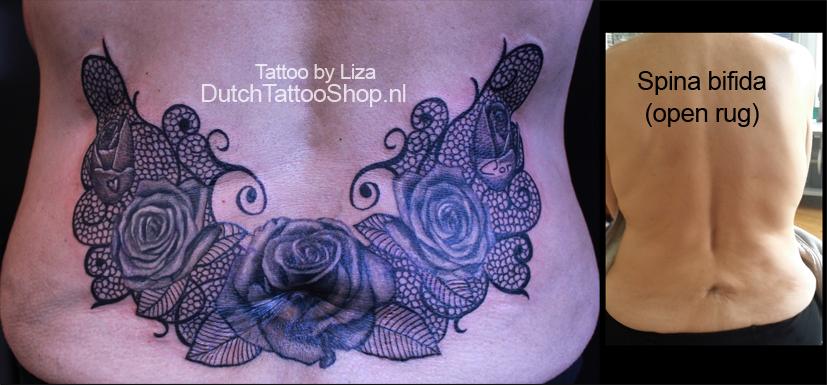 spina-bifida-open-rug-rozen-kant-tattoo-foliumzuur