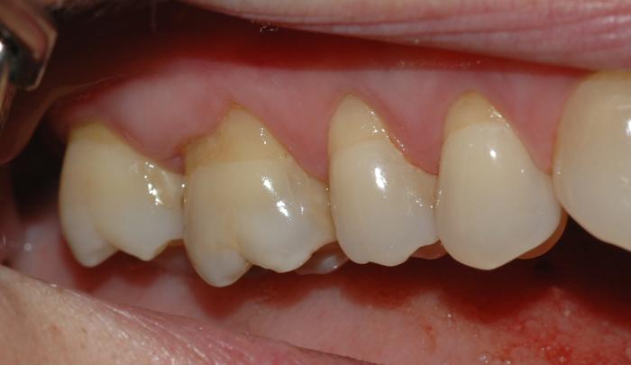 Bildet viser hvordan tannkjøttet over tid har trukket seg tilbake som følge av for hard tannbørsting