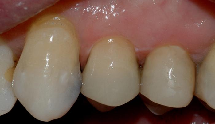 Bildet viser at den gjenstående amalgamfyllingen er fjernet, og at tannen er bygget opp igjen med en plastfylling.