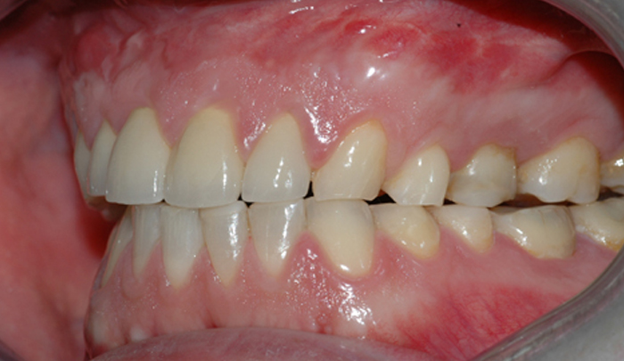 Bildet viser et eksempel på moderat tannslitasje som følge av tanngnissing.