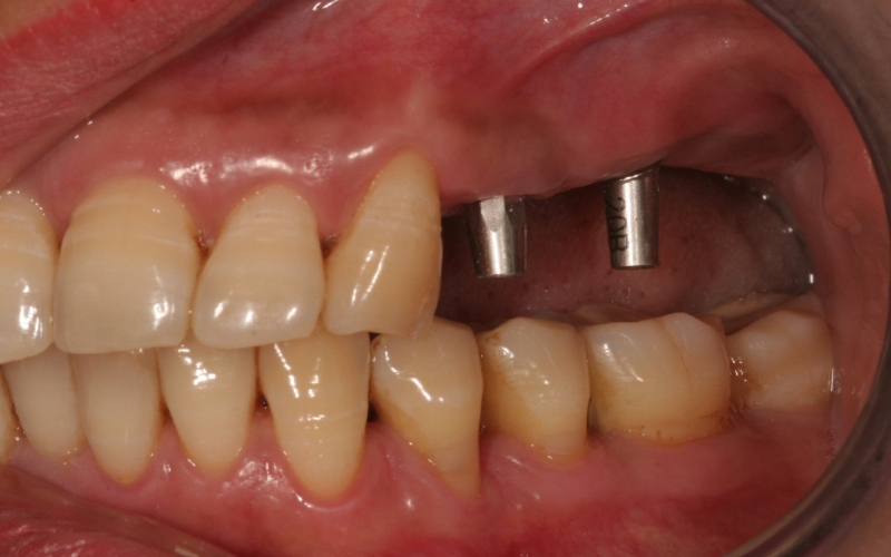 Bildet viser at det er operert inn 2 implantater.