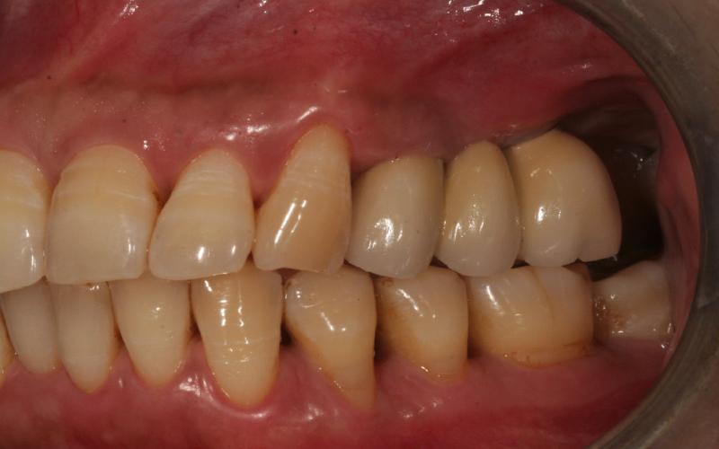 Broen er festet til implantatene. Pasienten har nå faste tenner å tygge med.