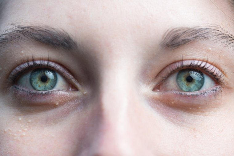 Close up of Emma Chatel's eyes