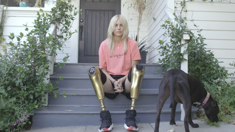 Watch How Lauren Wasser Fashions Girl With The Golden