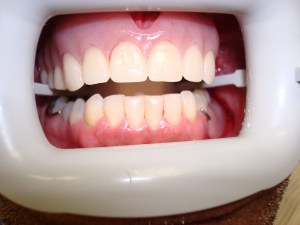 After Partial Denture in Dentist Plano TX Office