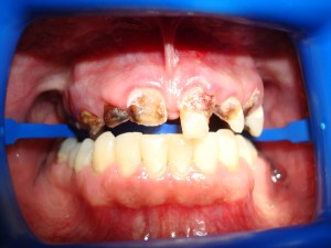 Before Partial Denture in Dentist Plano TX Office