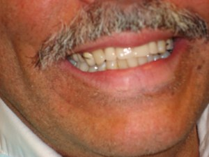 After Denture Treatment in Dentist Plano TX Office