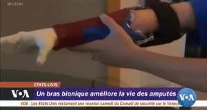 Un bras bionique améliore la vie des amputés