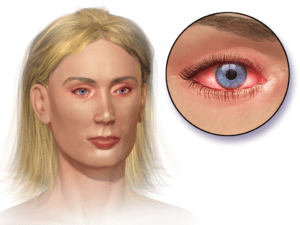 allergic-conjunctivitis-wikipedia
