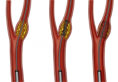 Angioplasty And Stent Placement