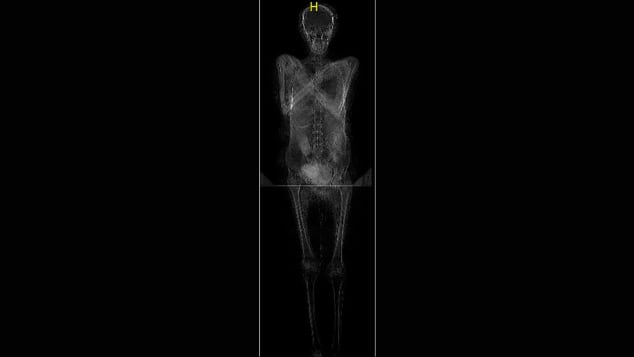A scan of the mummy revealed that a fetus was still in place in the womb.