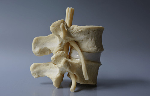 A lumbar disc spine model with 6 degrees of freedom, nuclear migration with manual compression, identical human opaque L4 – L5 bone and a red extruding nucleus.