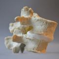 A spine model with grade 1 anterior spondylolisthesis - useful for explaining spinal stenosis symptoms
