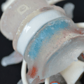 An enhanced herniated disc spine model to demonstrate disc herniation