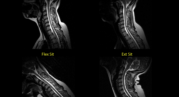 cervical spine imaging using upright MRI