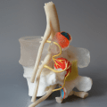 Facet Capsule and Medial Branches