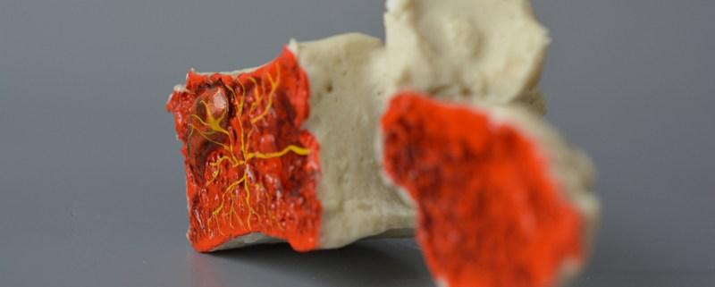 Modic vertebra with the basivertebral nerve demonstrating bone inflammation