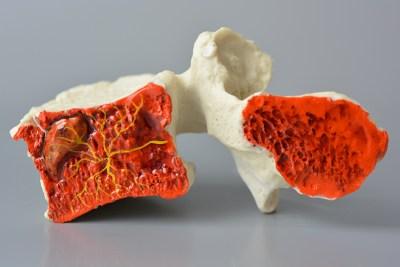 modic vertebra, basivertebral nerve, lumbar, endplate, model