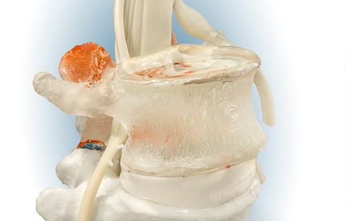 lumbar models, dynamic disc, disc model, spine model