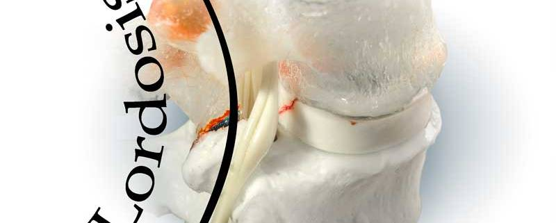 lordosis. degenrative joint disease