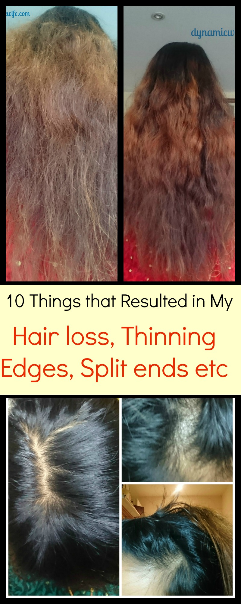 10 Causes Of My Thinning Edges Bald Spot And Split Ends