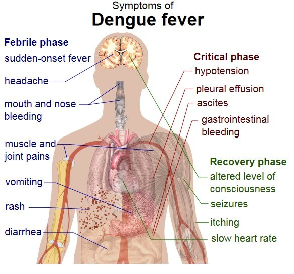 dyosathemomma: Common Rainy Day Illnesses-How to Prevent Rainy Day Diseases-Dengue Fever
