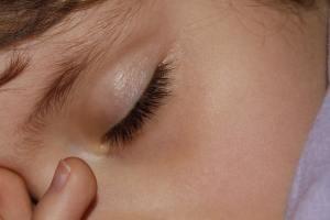 Dossier sommeil : comment retrouver le sommeil ?(1)