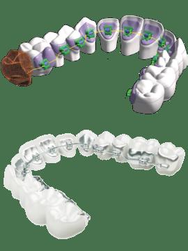 ortodoncja lingwalny