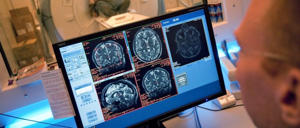 Stres reguluje tempo dojrzewania mózgu
